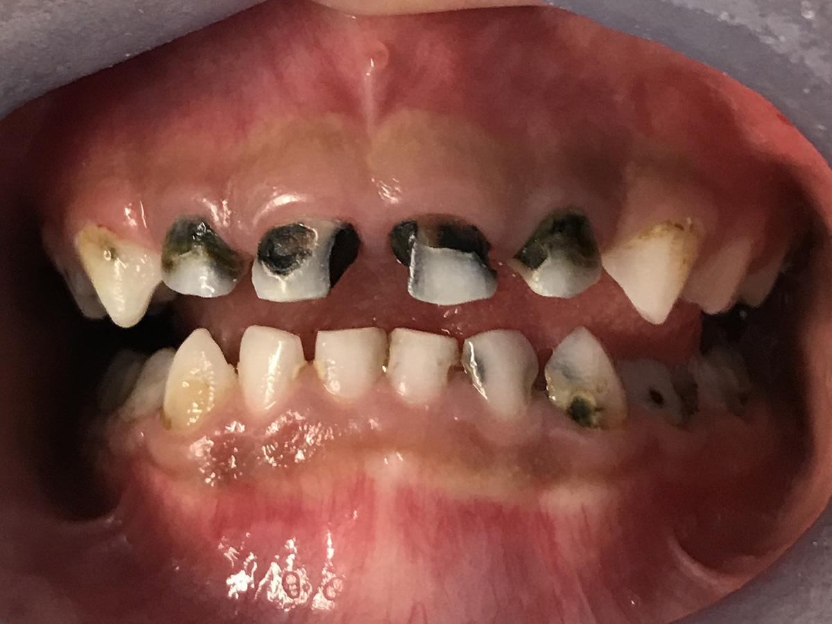 Tooth Decay In Children: This Is Why The Majority Of ... |Decayed Toddler Teeth